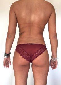 Cirugía combinada de remodelamiento corporal, mamas y abdomen.