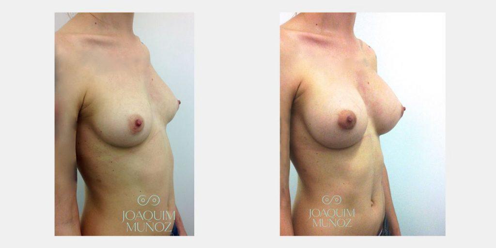 cirugía aumento de senos