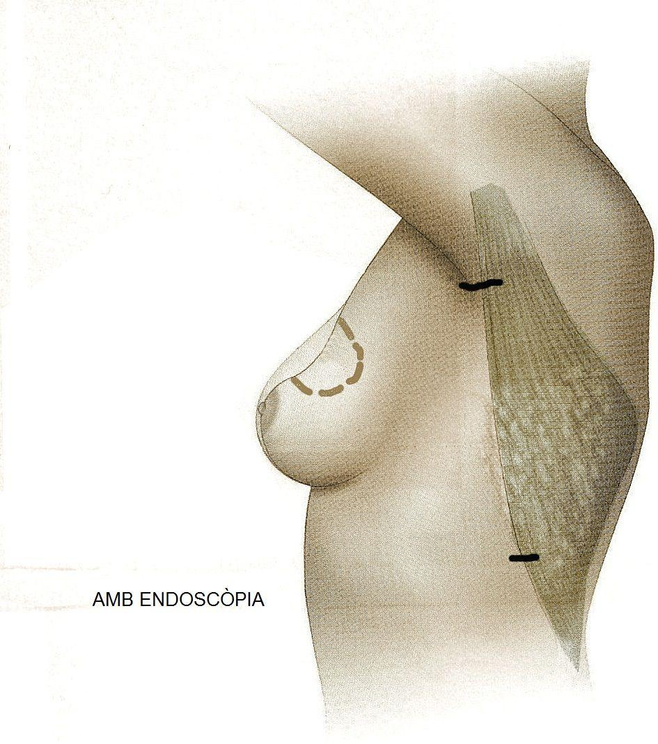 dosal ancho endoscópico