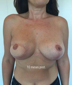 reconstruccion mastectomia diferida con dorsal ancho