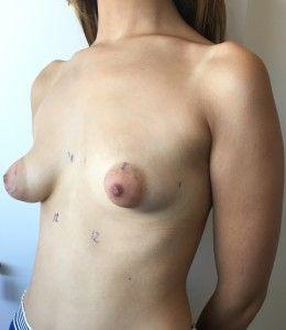 mama tuberosa o teta de cabra
