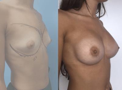 aumento mamario antes y despues