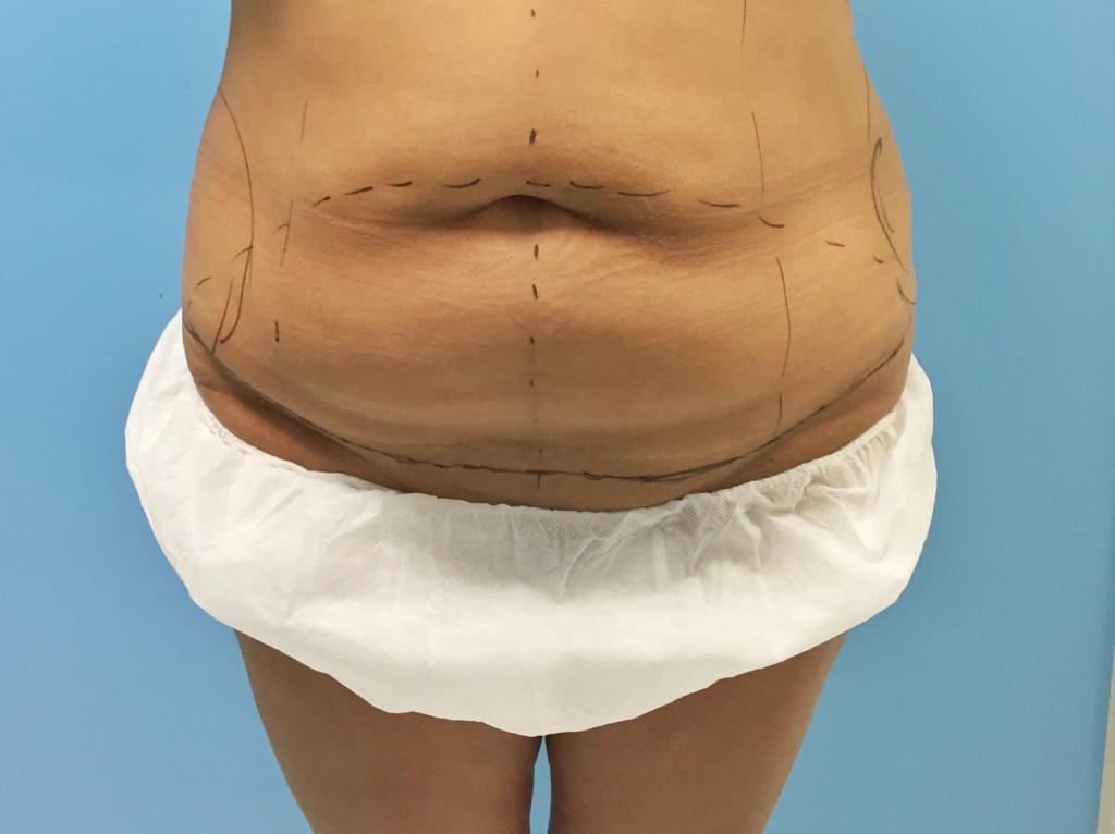 Cirugía del contorno corporal | Dr. Joaquim Muñoz