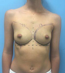 Antes y después aumento mamario