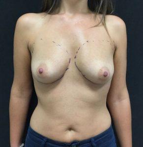 Operación de aumento de senos antes