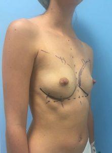 Aumento de senos antes y después
