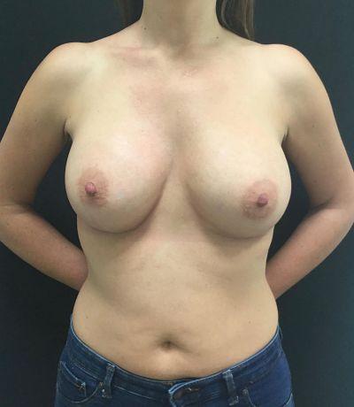 Operación de aumento de senos después