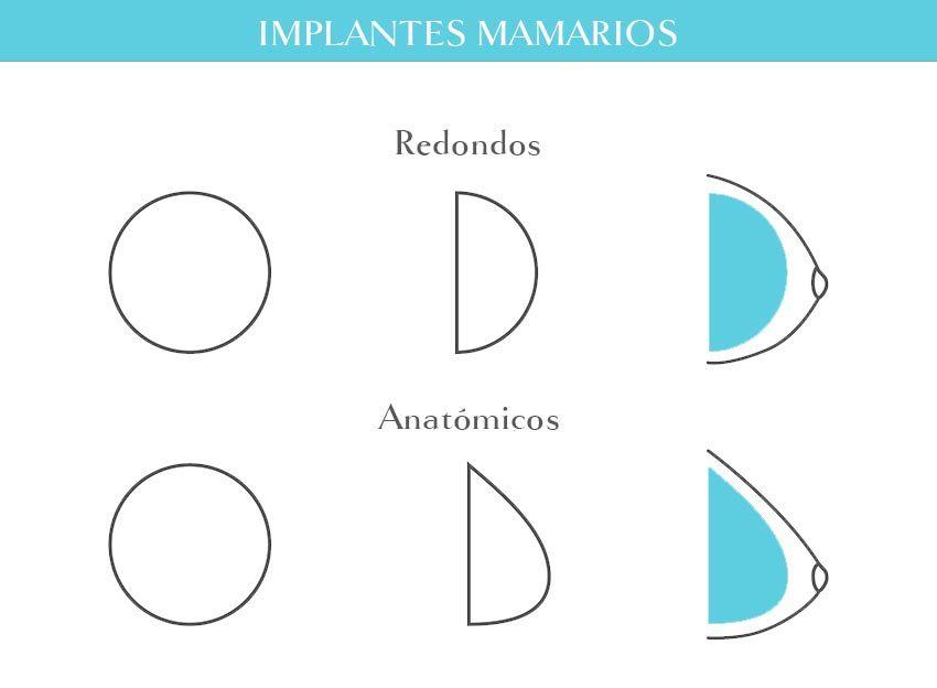 tipos de implantes de senos y tamaños