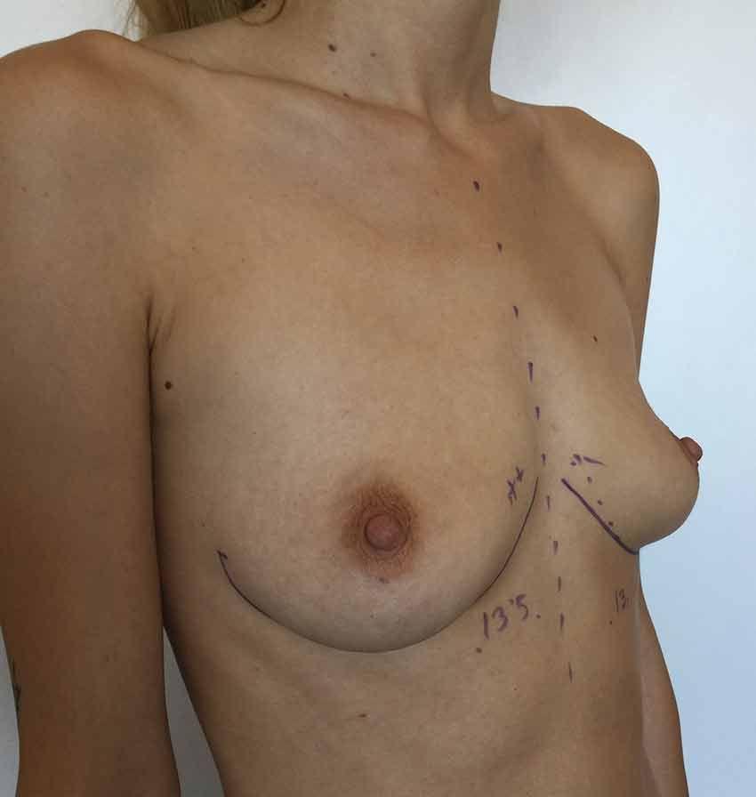 Antes del implante mamario