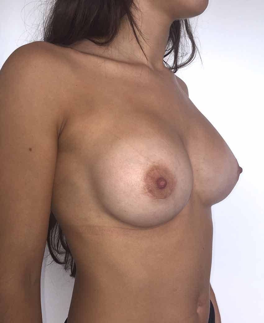 Después implante mamario