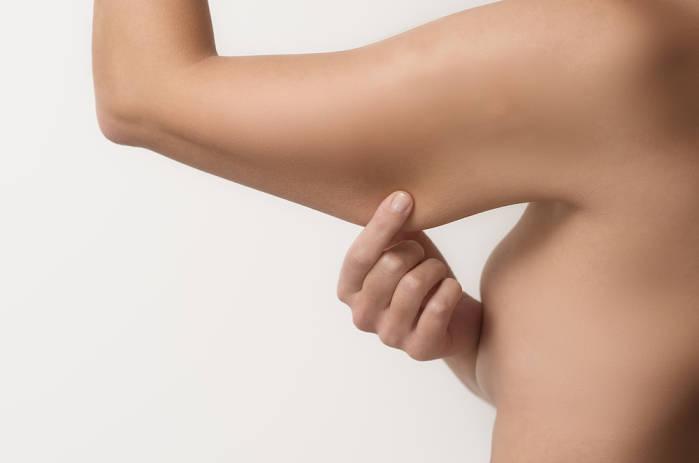 ¿Qué es un lifting de brazos?