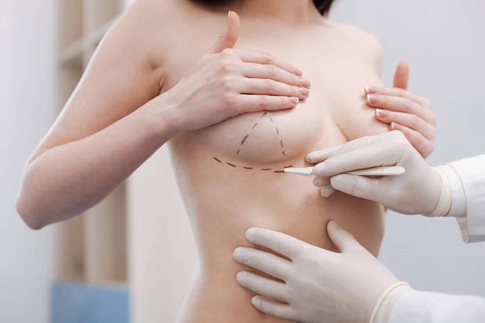 Reconstrucción de mama con técnica TRAM