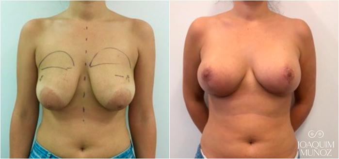 Mastopexia con implantes antes y después