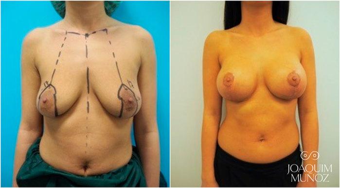 Mastopexia, antes y después