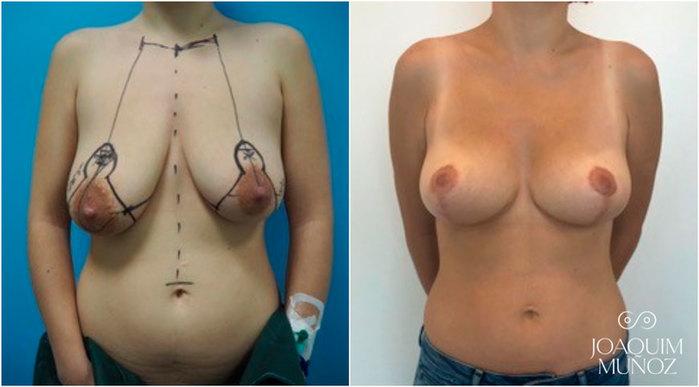 Operacion mastopexia, antes y después