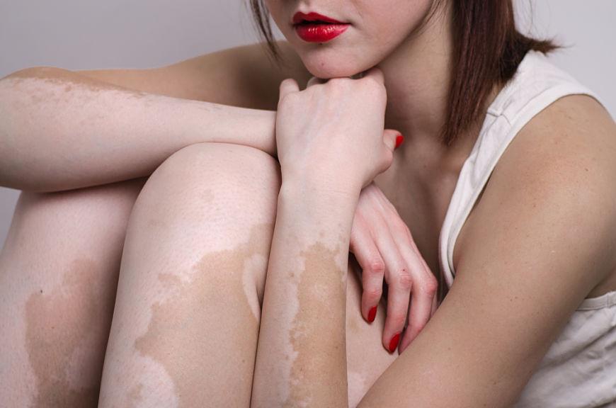 cómo cuidar la piel durante el embarazo aceite de calendula