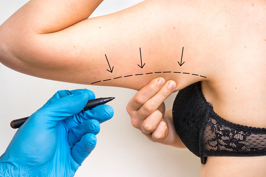 Intervención liposuccion de brazos