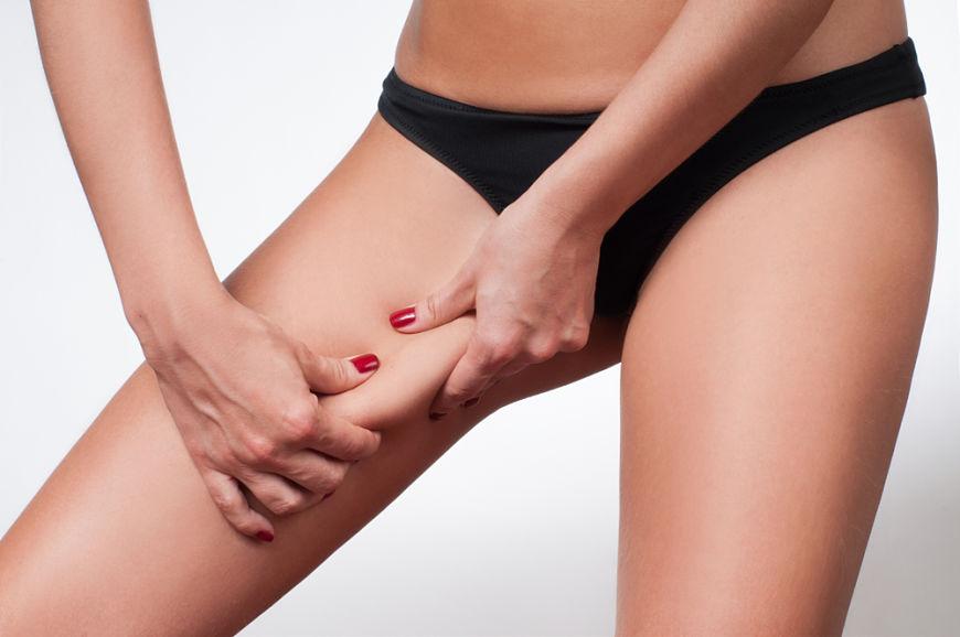 Liposuccion de piernas