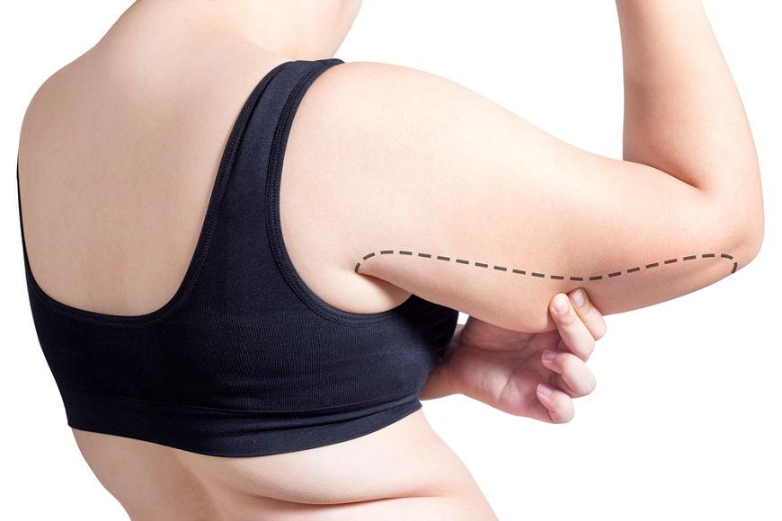 procedimiento liposuccion de brazos