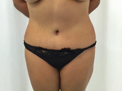 abdominoplastia-despues