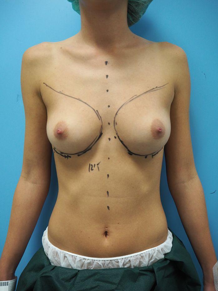 antes aumento mamario