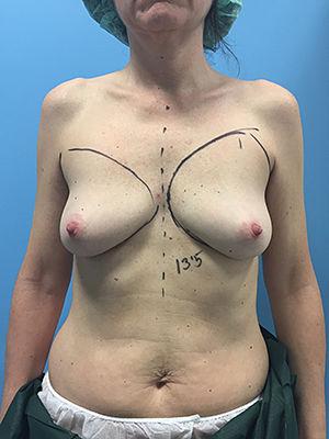 antes recosntruccion dorsal ancho endoscopico