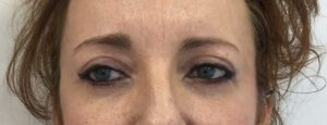 blefaroplastia despues