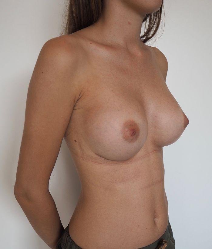 despues aumento mamario